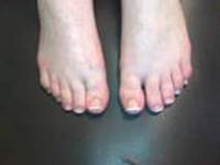 Как надо лечить варикоз ног